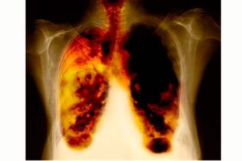 Cuba muestra resultados de vacuna contra cáncer de pulmón CIMAvax-EGF